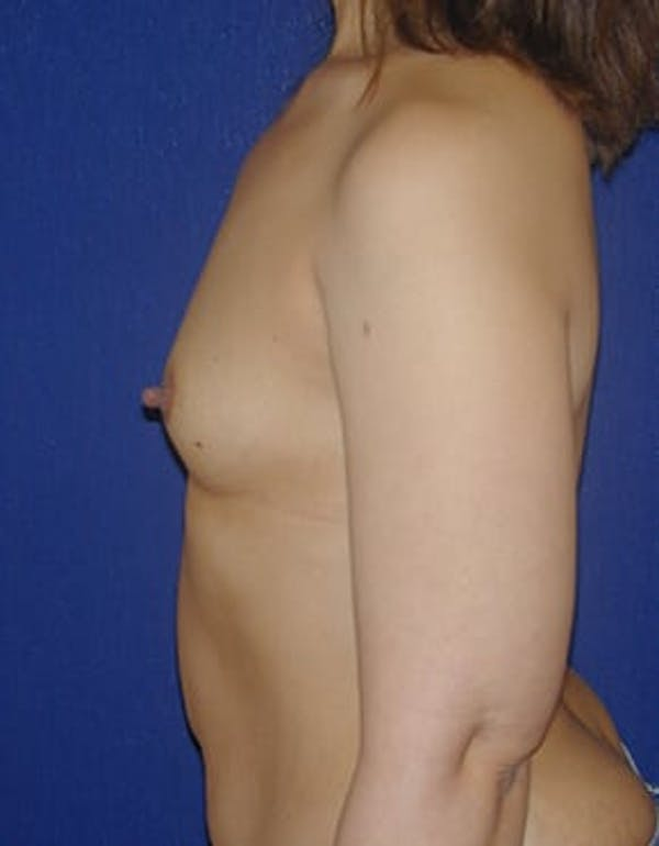 Breast Augmentation Gallery - Patient 4861085 - Image 5