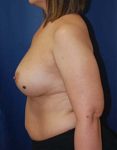 Breast Augmentation Gallery - Patient 4861085 - Image 6