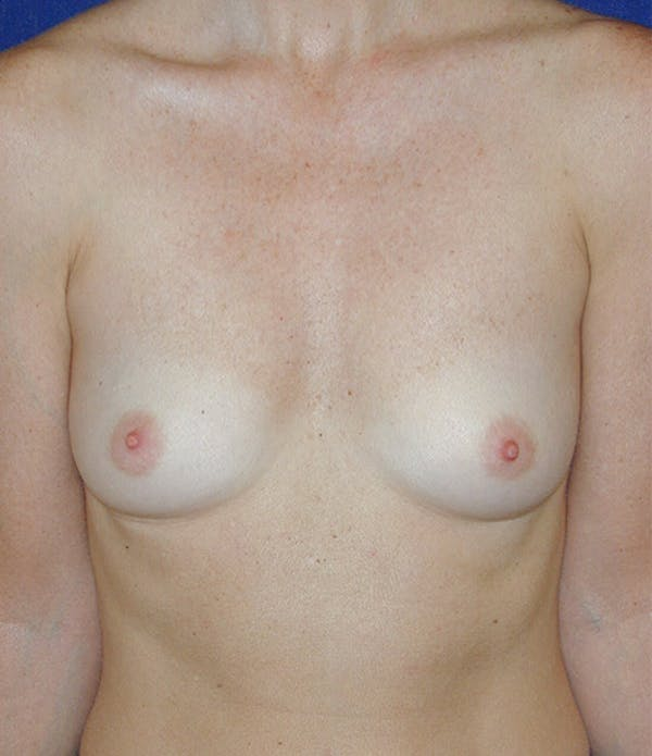 Breast Augmentation Gallery - Patient 4861086 - Image 1