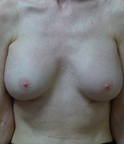 Breast Augmentation Gallery - Patient 4861086 - Image 2