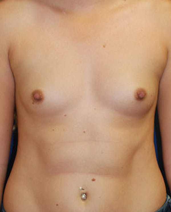 Breast Augmentation Gallery - Patient 4861091 - Image 1