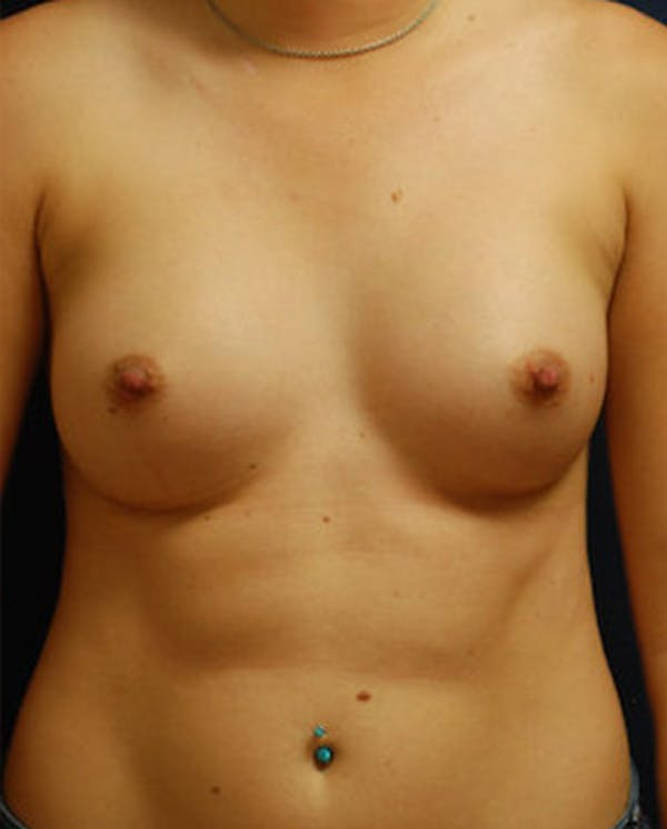 Breast Augmentation Gallery - Patient 4861091 - Image 2