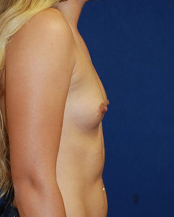 Breast Augmentation Gallery - Patient 4861091 - Image 3