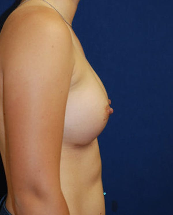Breast Augmentation Gallery - Patient 4861091 - Image 4