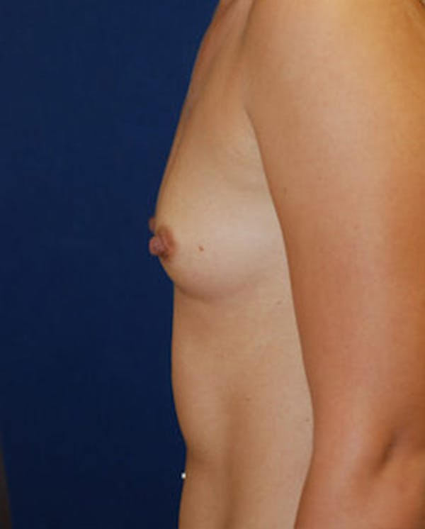 Breast Augmentation Gallery - Patient 4861091 - Image 5