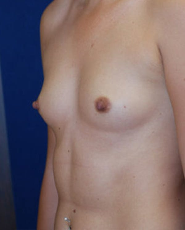 Breast Augmentation Gallery - Patient 4861091 - Image 7