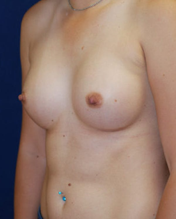 Breast Augmentation Gallery - Patient 4861091 - Image 8
