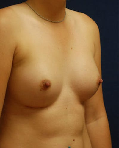Breast Augmentation Gallery - Patient 4861091 - Image 10