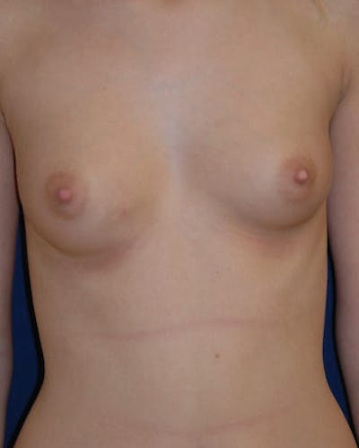 Breast Augmentation Gallery - Patient 4861093 - Image 1