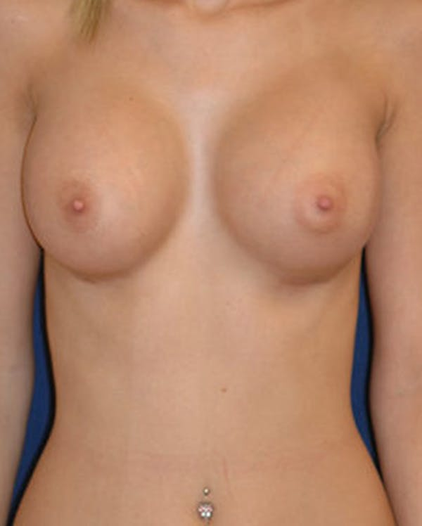 Breast Augmentation Gallery - Patient 4861093 - Image 2