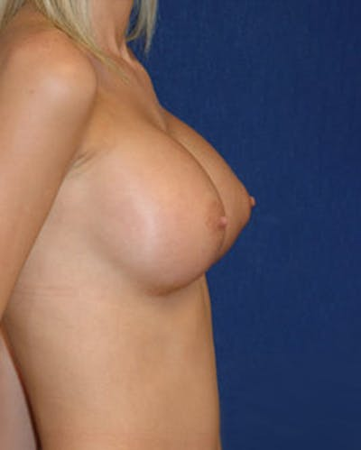 Breast Augmentation Gallery - Patient 4861093 - Image 4