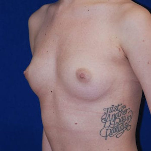 Breast Augmentation Gallery - Patient 4861096 - Image 1