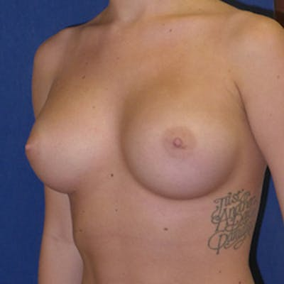 Breast Augmentation Gallery - Patient 4861096 - Image 2