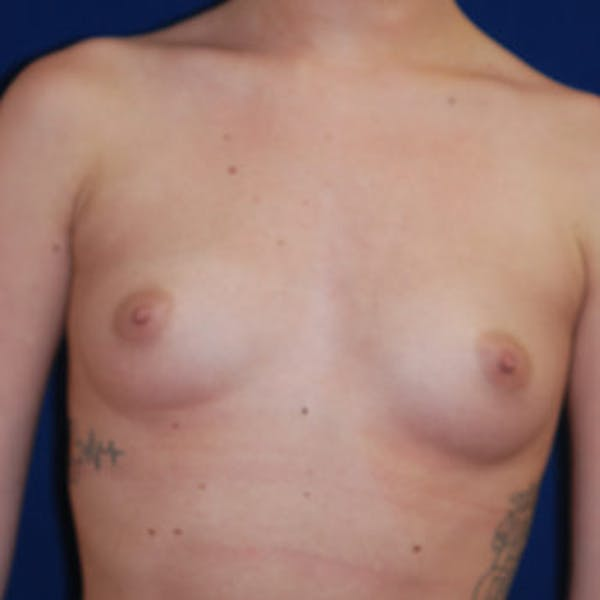 Breast Augmentation Gallery - Patient 4861096 - Image 3