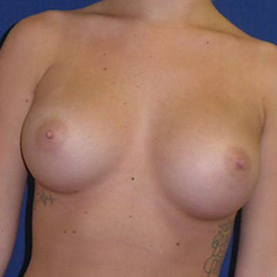 Breast Augmentation Gallery - Patient 4861096 - Image 4