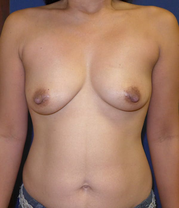 Breast Augmentation Gallery - Patient 4861097 - Image 1