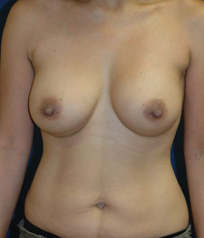 Breast Augmentation Gallery - Patient 4861097 - Image 2
