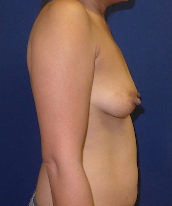 Breast Augmentation Gallery - Patient 4861097 - Image 3