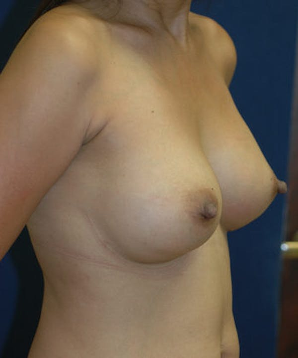 Breast Augmentation Gallery - Patient 4861097 - Image 4
