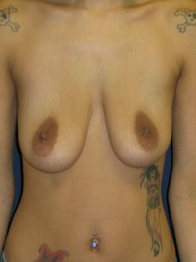 Breast Augmentation Gallery - Patient 4861098 - Image 1