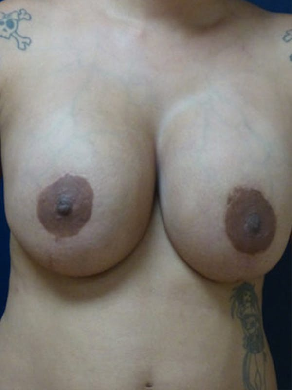 Breast Augmentation Gallery - Patient 4861098 - Image 2