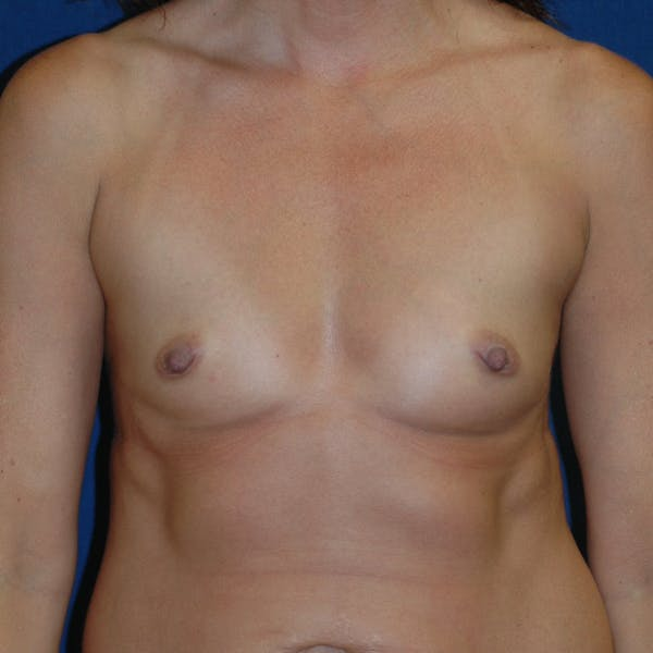 Breast Augmentation Gallery - Patient 4861102 - Image 1