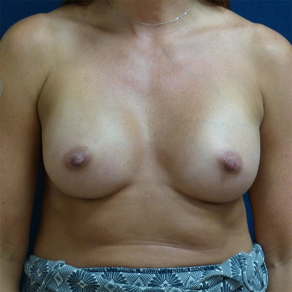 Breast Augmentation Gallery - Patient 4861102 - Image 2