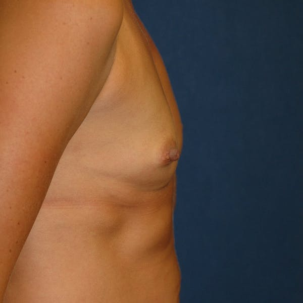 Breast Augmentation Gallery - Patient 4861102 - Image 3