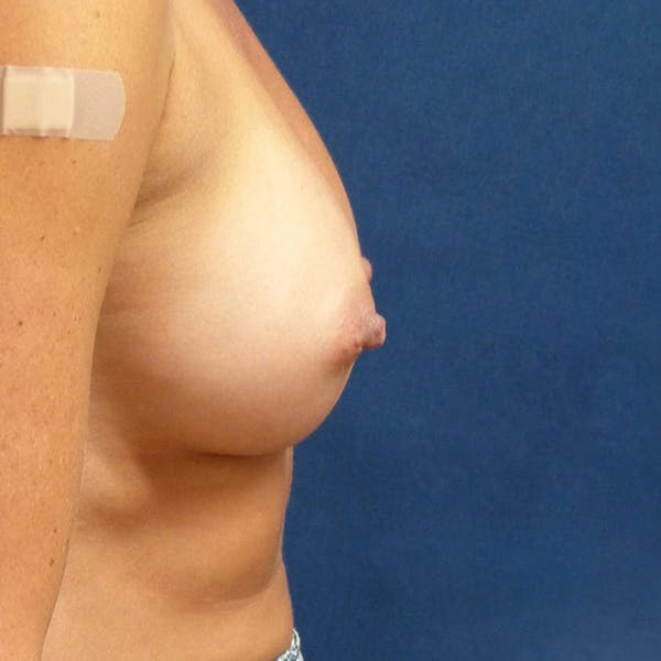 Breast Augmentation Gallery - Patient 4861102 - Image 4
