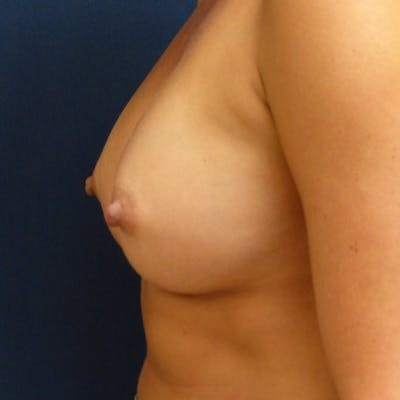 Breast Augmentation Gallery - Patient 4861102 - Image 6