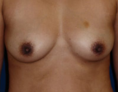 Breast Augmentation Gallery - Patient 4861107 - Image 1