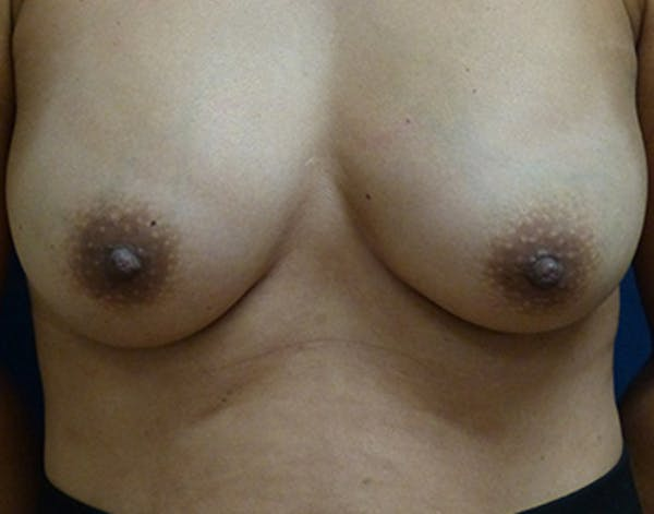 Breast Augmentation Gallery - Patient 4861107 - Image 2