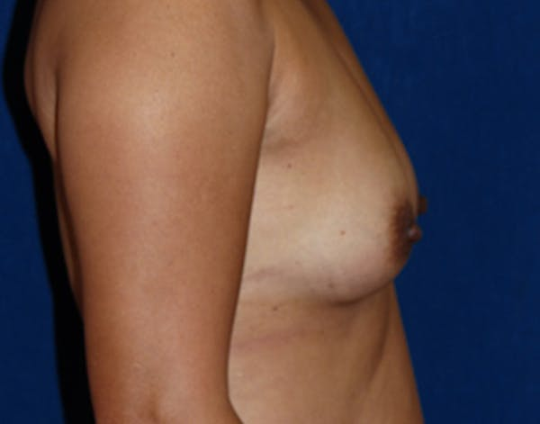 Breast Augmentation Gallery - Patient 4861107 - Image 3