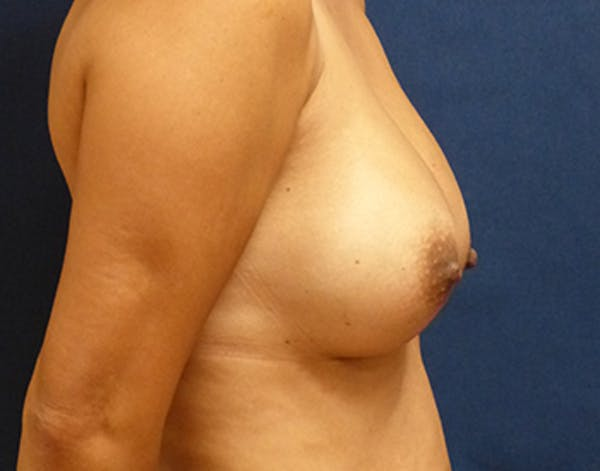 Breast Augmentation Gallery - Patient 4861107 - Image 4