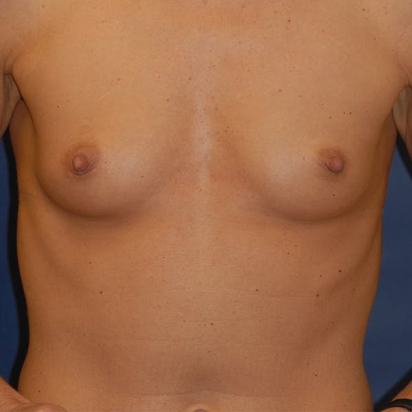 Breast Augmentation Gallery - Patient 4861110 - Image 1