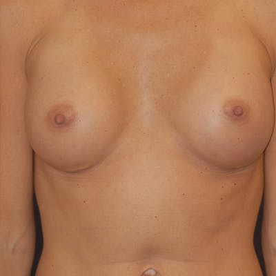 Breast Augmentation Gallery - Patient 4861110 - Image 2