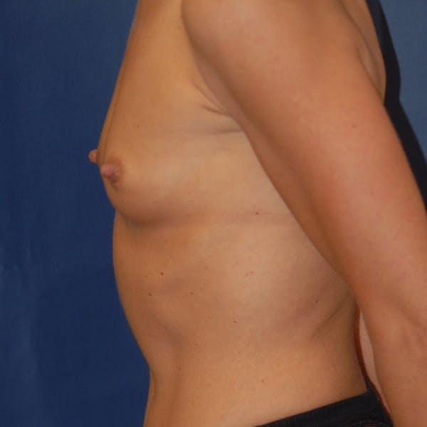 Breast Augmentation Gallery - Patient 4861110 - Image 3