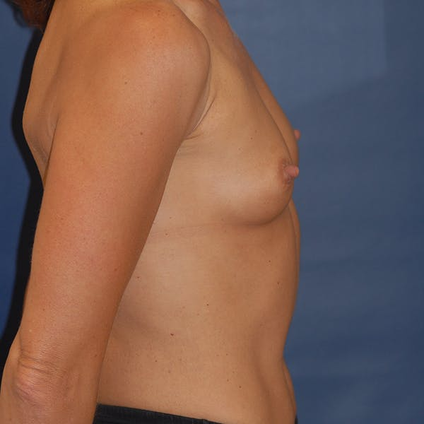 Breast Augmentation Gallery - Patient 4861110 - Image 5