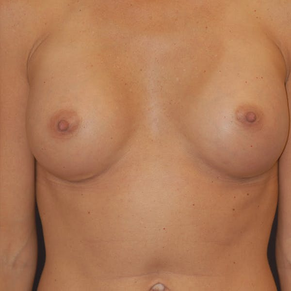 Breast Augmentation Gallery - Patient 4861113 - Image 1