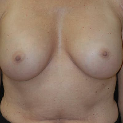 Breast Augmentation Gallery - Patient 4861113 - Image 2