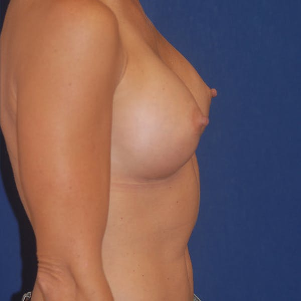 Breast Augmentation Gallery - Patient 4861113 - Image 3