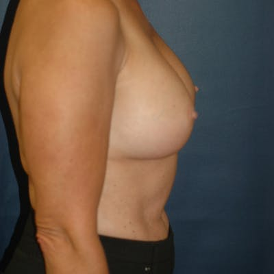 Breast Augmentation Gallery - Patient 4861113 - Image 4