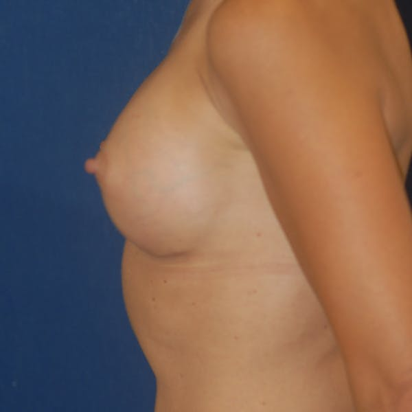 Breast Augmentation Gallery - Patient 4861113 - Image 5