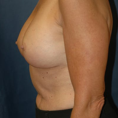 Breast Augmentation Gallery - Patient 4861113 - Image 6