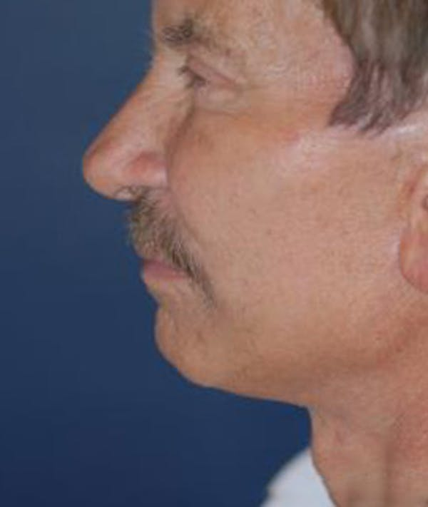 Browlift Gallery - Patient 4861456 - Image 3
