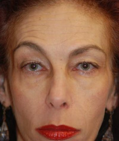 Browlift Gallery - Patient 4861463 - Image 1