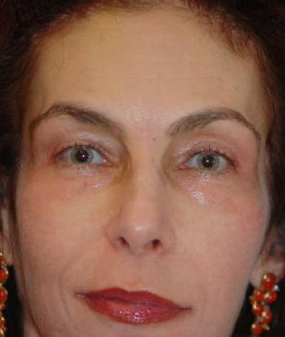 Browlift Gallery - Patient 4861463 - Image 2