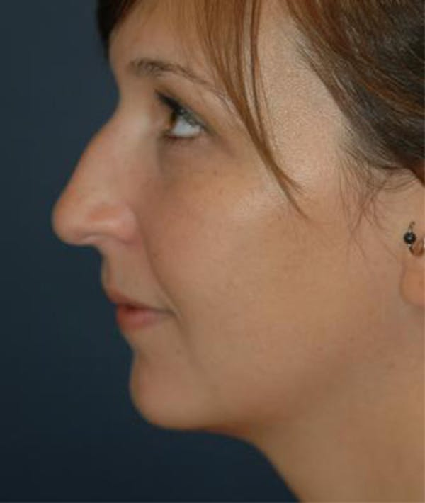 Chin Augmentation Gallery - Patient 4861487 - Image 1