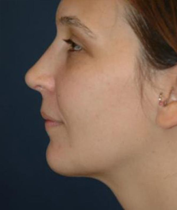 Chin Augmentation Gallery - Patient 4861487 - Image 2