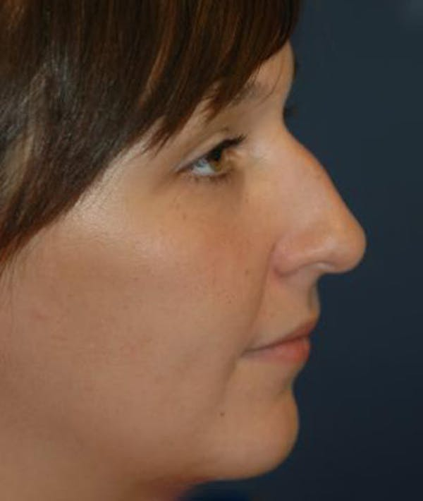 Chin Augmentation Gallery - Patient 4861487 - Image 3